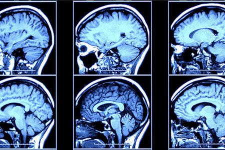 Brain scans could be marketing tool of the future